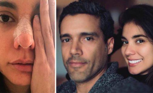 Novio de actriz Eileen Moreno rompe el silencio y habla sobre la agresión